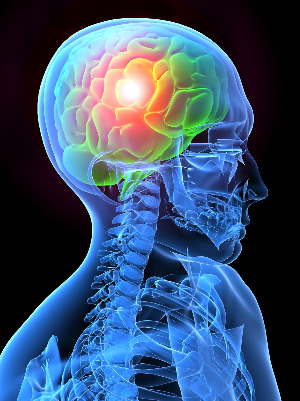 Migraines in Redmond Washington