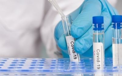 Here's How To Get A Free Coronavirus Antibody Test In NYC