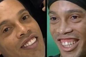 Ronaldinho has finally fixed his teeth