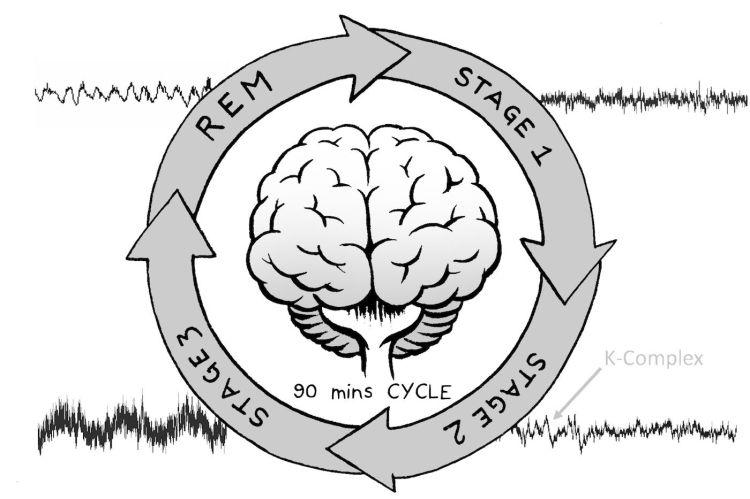 Resultado de imagen de eeg sleep experiment