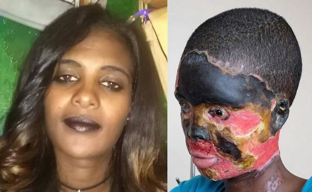 What an Evil: Woman left half-blind, mouth melted after brutal acid attack by estranged husband