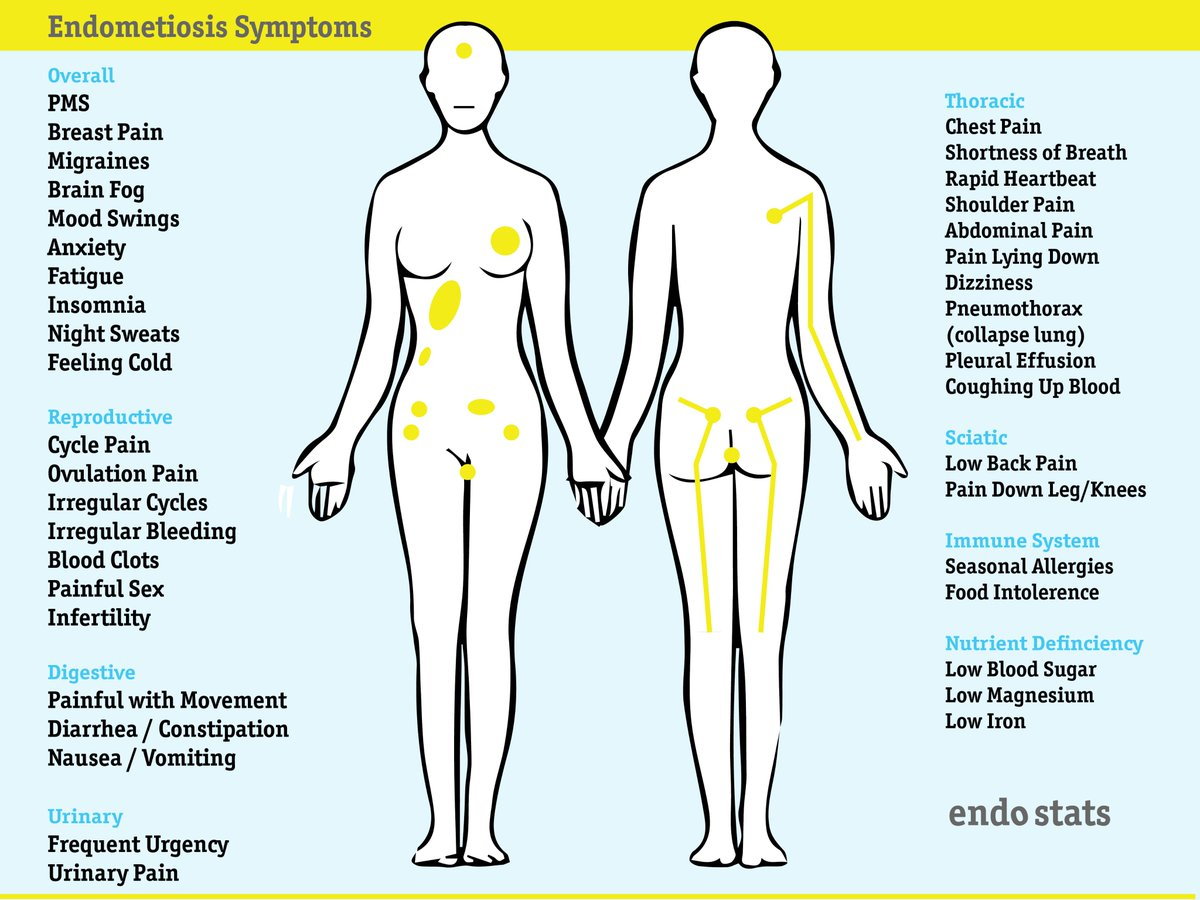 How to recognize signs of endometriosis 77