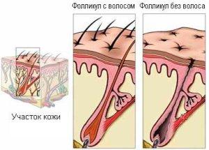 Выпадают волосы на лобке у женщин. Облысение лобковой части у женщин причины
