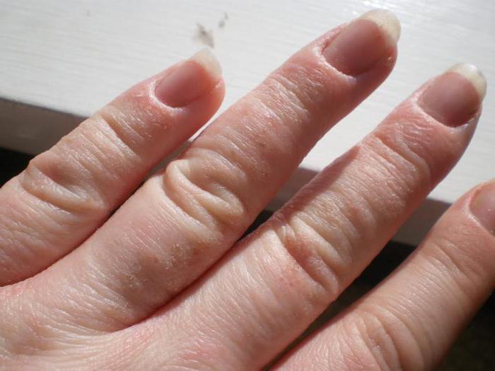 eczema pe shin în varicoză este posibil să se trateze mierea varicoasă
