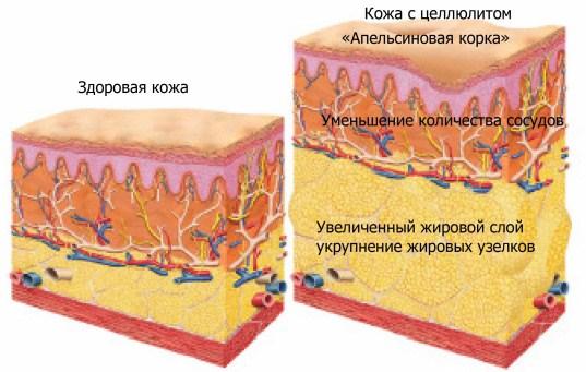 Боремся с целлюлитом с помощью народной медицины. Апельсиновая корка или орешек: народный опыт в борьбе с целлюлитом