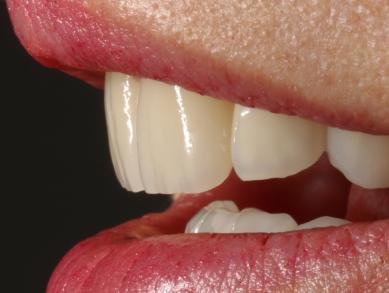 Alle Zähne mit Vollkeramik versorgt
