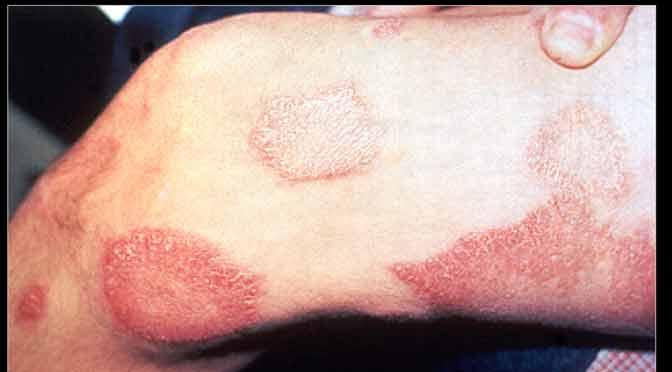La lepra retrocede en América
