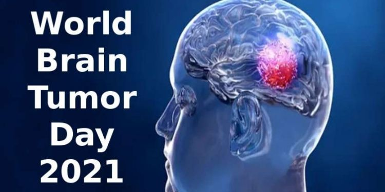 health-world-brain-tumor-day-2021-what-is-the-causes-symptoms-and-treatment