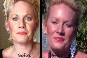 skin complexion before and after