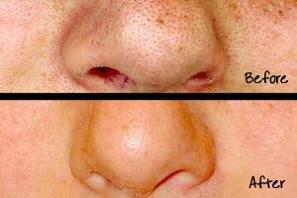 how to diminish skin pores