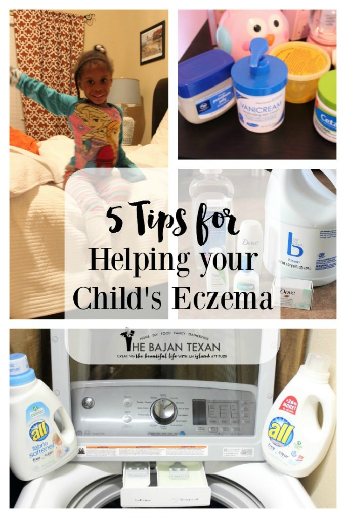 tips for eczema