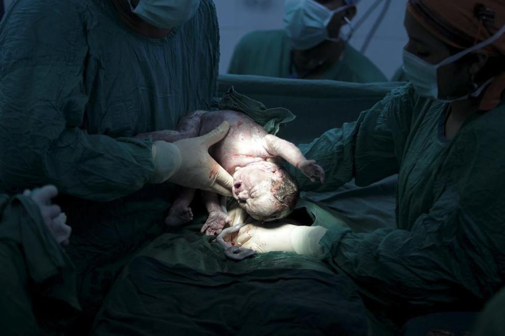 Niño nace por cesárea; madre llevaba 4 meses muerta
