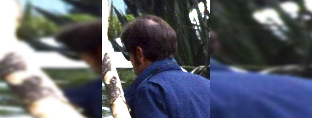 Alopecia, un mal que ataca a cinco de cada diez mexicanos