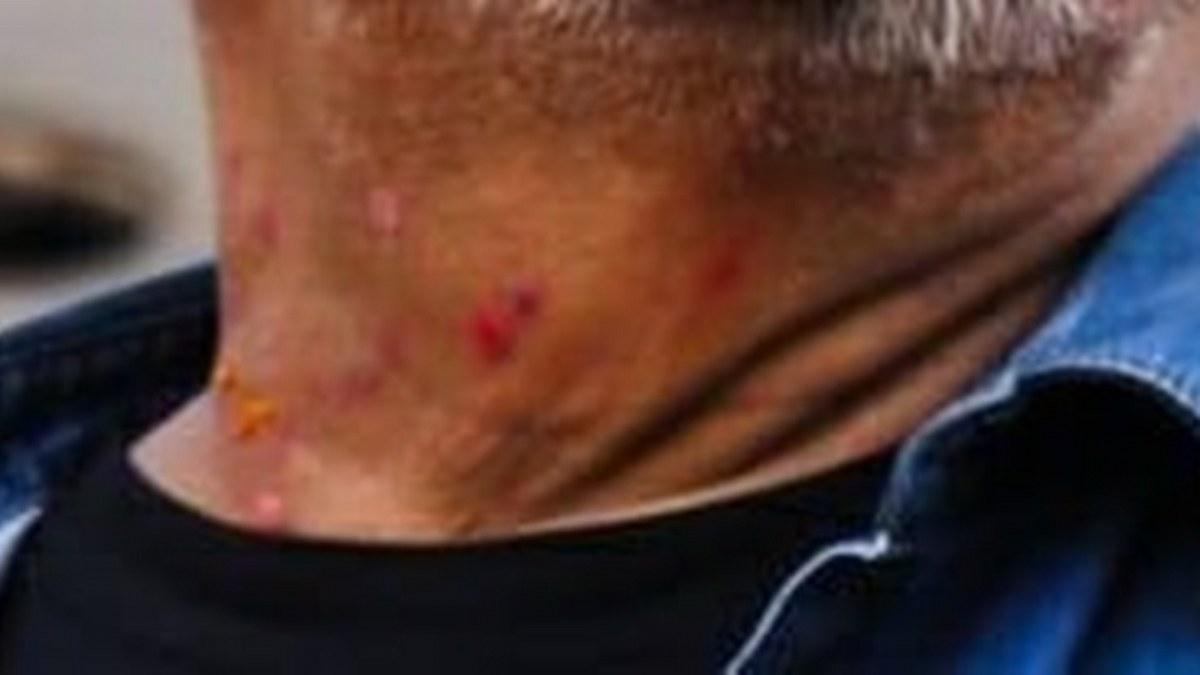 Estructura nasal de Félix Salgado muestra daño por uso crónico de cocaína: especialista 2