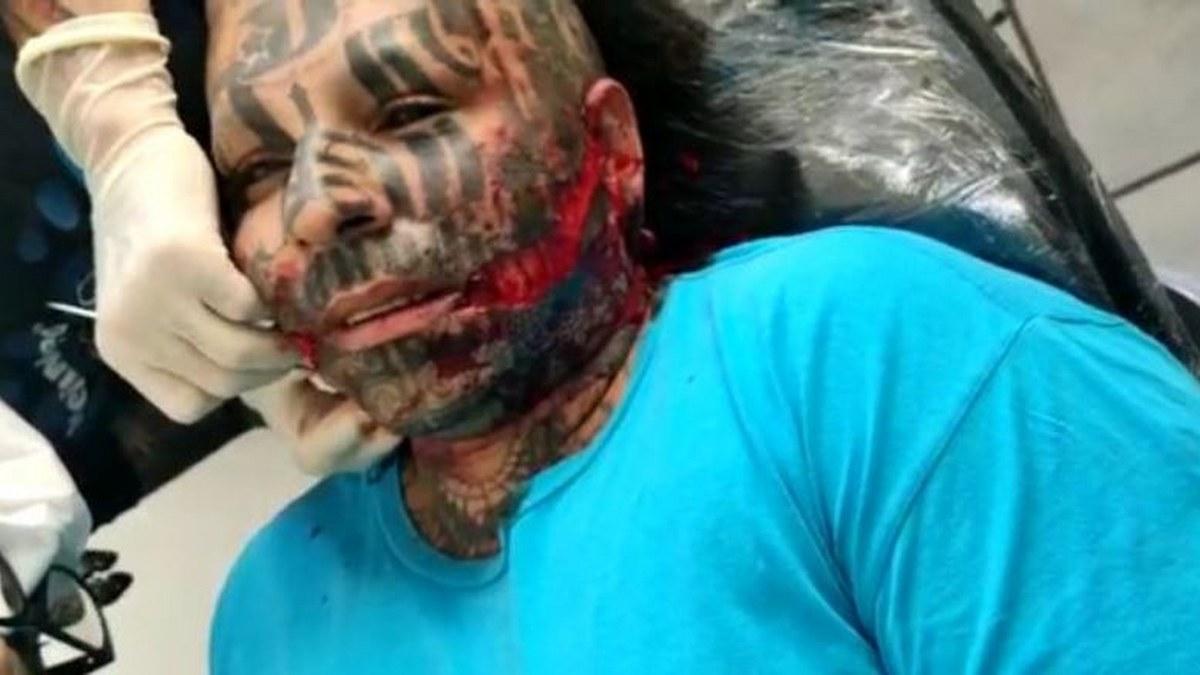 El rapero demonio se arrancó la carne de la cara para hacerse una risa demoniaca 2