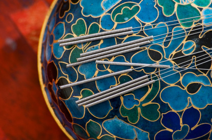 Close up of acupuncture needles with emphasis on the spring area. Photographed on a round asian box.