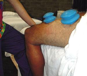 Orthopedic Coupling