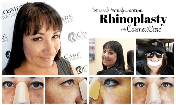 CosmetiCare Rhinoplasty 1st Week Transformation