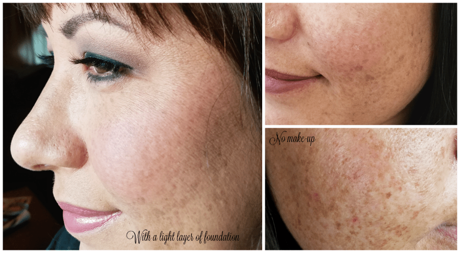 Actual skin town before peel with cosmeticare; 5 types of peels at CosmetiCare