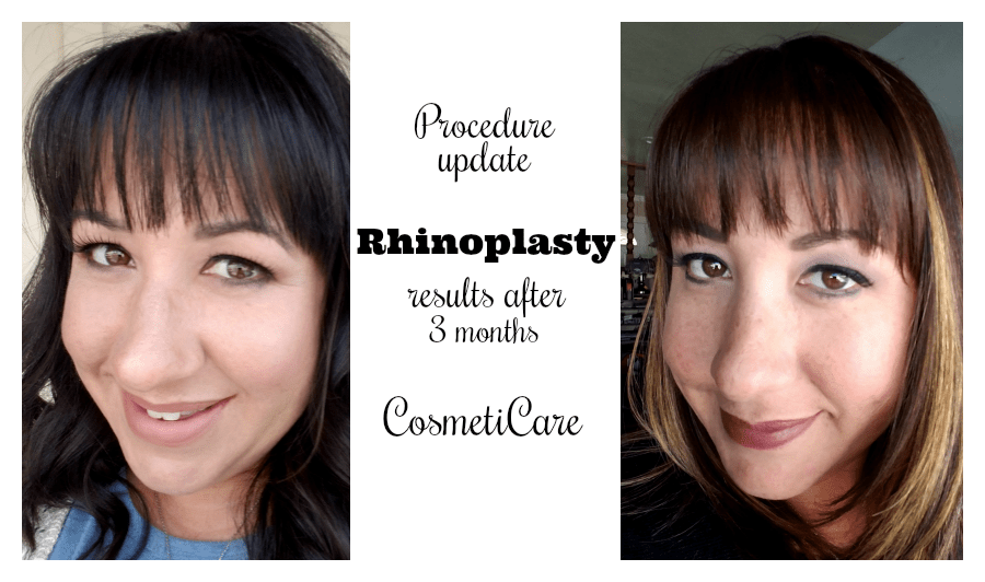 Rhinoplasty Results: 3 Months After Surgery  | @CosmetiCare #CosmetiCareAmbassador #ad