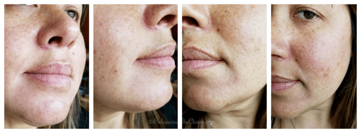 Results of chemical peel with CosmetiCare