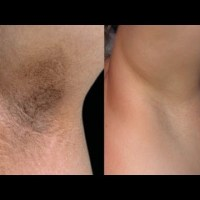 Easy Tips: Lighten Dark Armpits With These Simple Steps