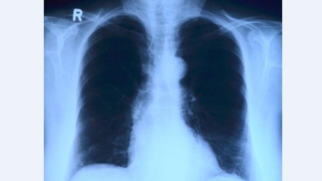 U Vojvodini godišnje oboli 1.600 ljudi od raka pluća