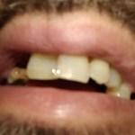 Skoro milion Srba bez zuba, a samo polovina ih pere svaki dan