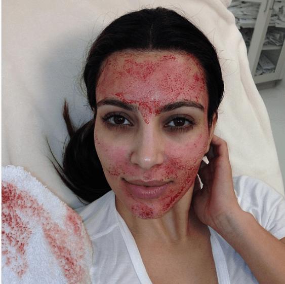 Kim Sues Over Facial