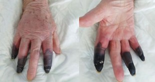 covid fingers