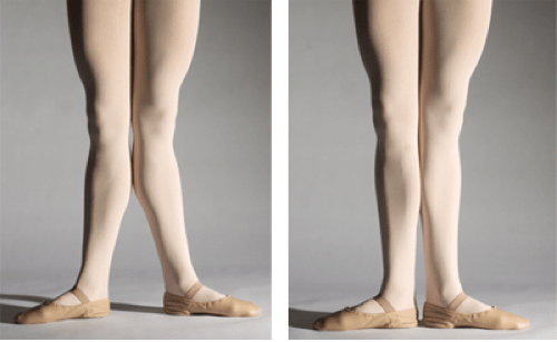Genu Recurvatum or Hyperextension of the Knees