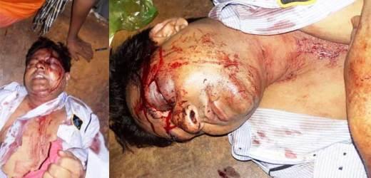 रानीगंज बाजारः सेंट्रल बैंक एटीएम गार्ड पर जानलेवा हमला