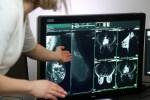 В Латвии от рака умирает по 6 тыс человек в год. Можно спасти каждого третьего