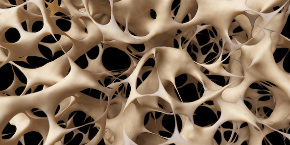 8 facts about osteoporosis