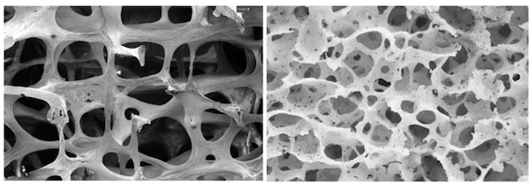 Healthy bone tissue compared to osteoporotic bone