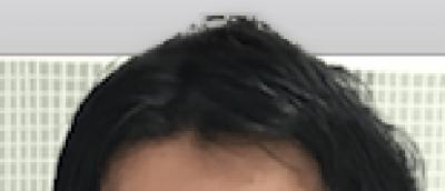 今回は頭頂部の画像が元画像に比べてまだ明るいので、覆い焼きツールでなぞると暗くなって自然な感じになる。