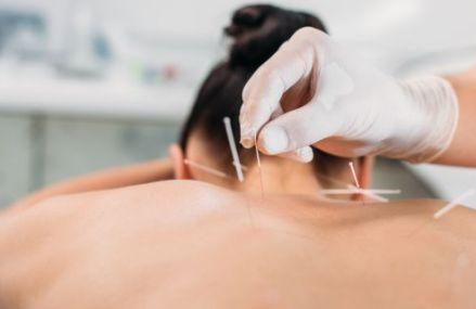 Tot ce trebuie sa stii despre acupunctura