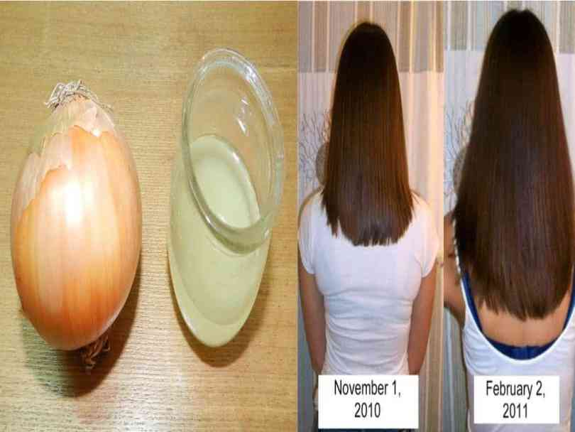 Onion for hair-Onion juice recipes for hair