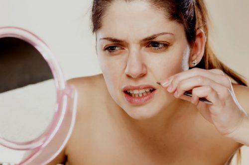 امرأة تعاني من شعر الوجه الزائد