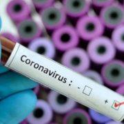 En RD más de 36 mil infectados y 786 muertos
