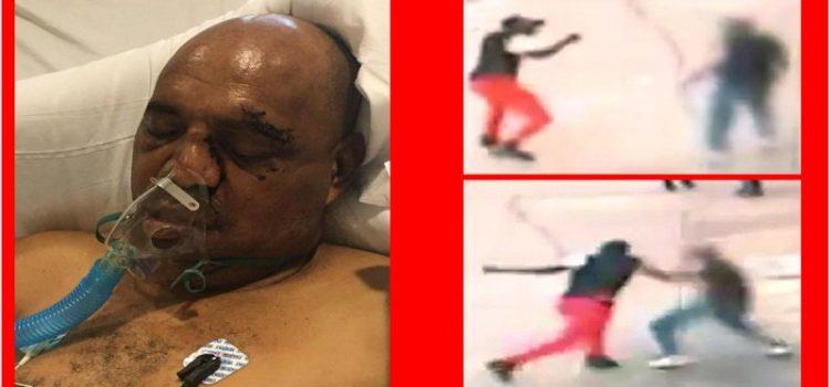 Sigue grave dominicano atacado a trompadas