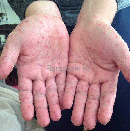 Вирус Коксаки: симптомы и лечение. Вирус Коксаки: профилактика проще лечения. Симптомы, причины, как не заболеть