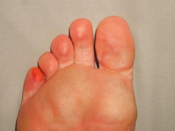 Look after your feet | BARAKA