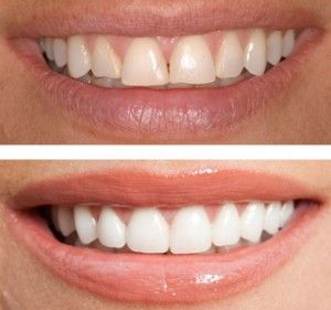 ESTÉTICA DENTAL -  -