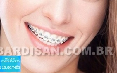 Plano odontológico que cobre aparelho e manutenção por 115,00/mês por pessoa 5 (1)