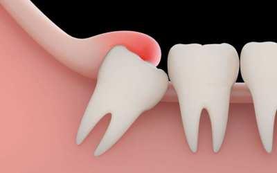 Plano Dental cobre extração de siso sem carência por 46,50/mês por pessoa 0 (0)