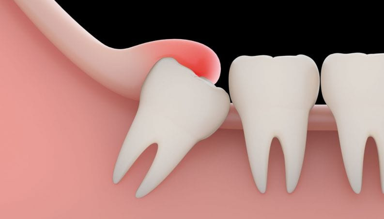 plano-dental-cobre-extração-de-siso