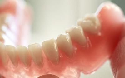 Quais Próteses os Planos Odontológicos da Amil cobrem ? 4 (16)
