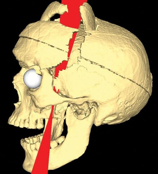 Simulated_Connectivity_Damage_of_Phineas_Gage_vanHorn_ProbablePaths