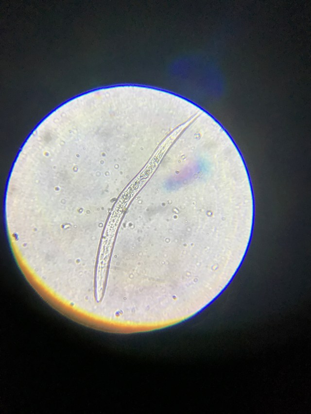 Juvenile bacterial feeder nematode at 400x
